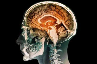 insan-beyni-üretildi-1.jpg